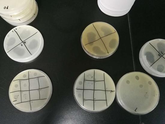 中科院武汉病毒研究所实验室中的噬菌体培养皿